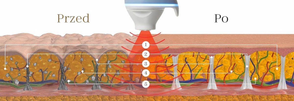 Bezbolestná léčba celulitidy, proces, nejúčinější metoda BTL Unison, Beauty clinic Dana