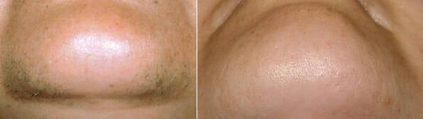 BTL Exilite - redukce chloupků na bradě, foto před a po, Clinic Dana, Praha 9