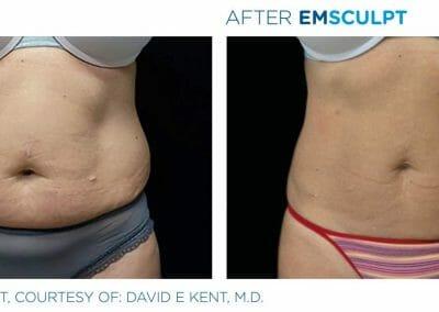 Zkuste EMSCULPT, jediný přístroj na světě, který odstraňuje tuk a zpevňuje svaly. Břicho před a po. Beauty Studio Dana, Praha 9