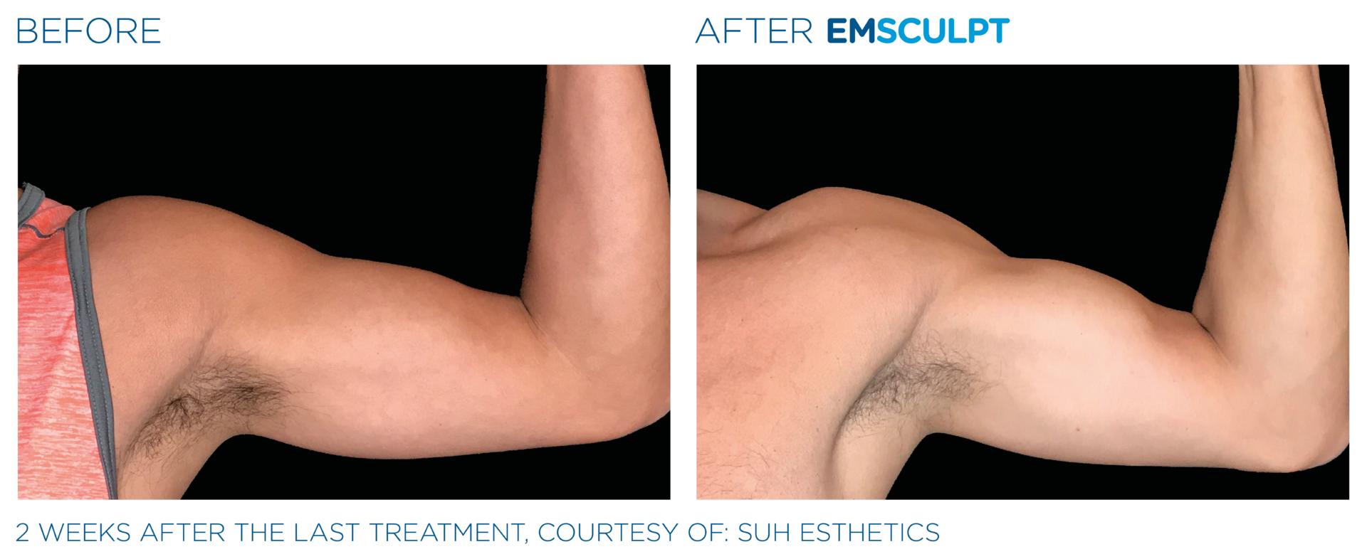 Foto před a po. EMSCULPT - tvorba svalů na rukou, redukce tuku, zvyšování výkonnosti a tvarování postavy, Objednejte se Beauty Studio Dana, Praha 9