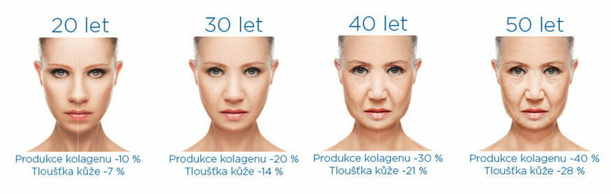 Obrázky, jak se v určitém věku zpomaluje tvorba kolagenu a zjemňuje se tlouštka kůže, Exilis Elite omlazuje a zpomaluje stárnutí, objednejte se Praha 9, Beauty studio Dana