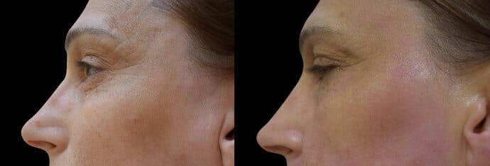 BTL Exilis Elite, omlazení čela, tváře a očního okolí. Vyzkoušejte v Beauty Studiu Dana, Praha 9